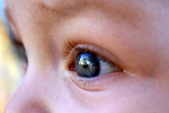 Kids eye-2408020_1920 by virginia332 at Pixabay FREE LIC CC00