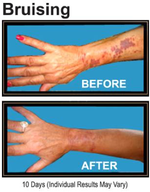 Smart Cover Reviews >> Makeup University Inc Smart Cover Anti Bruise Cream Works
